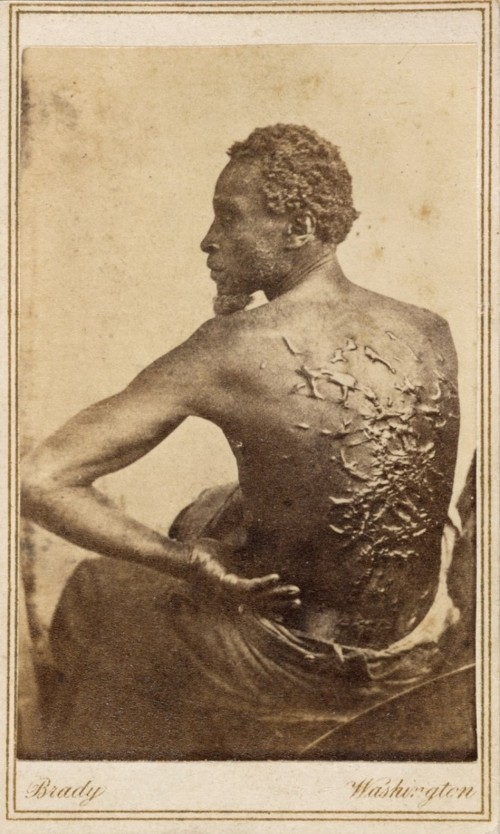Gordon, the slave pictured here, endured terrible brutality from his master before escaping to Union Army lines in 1863. He would become a soldier and help fight to end the violent system that produced the horrendous scars on his back. Matthew Brady, Gordon, 1863. Wikimedia, http://commons.wikimedia.org/wiki/File:Gordon,_scourged_back,_NPG,_1863.jpg.